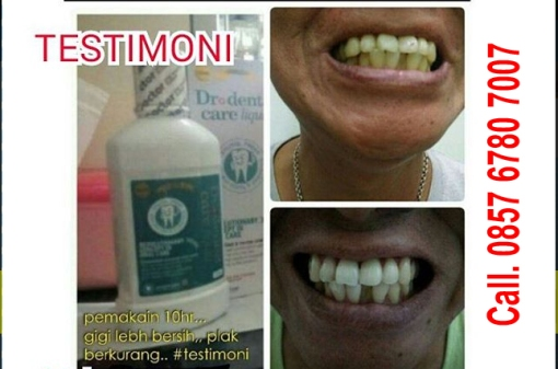 Manfaat-dr-Dental-Care-Liquid-Review-Harga-Surabaya