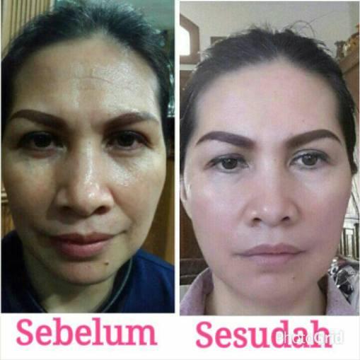 Testimoni produk swisderm hydrating toning lotion Indonesia